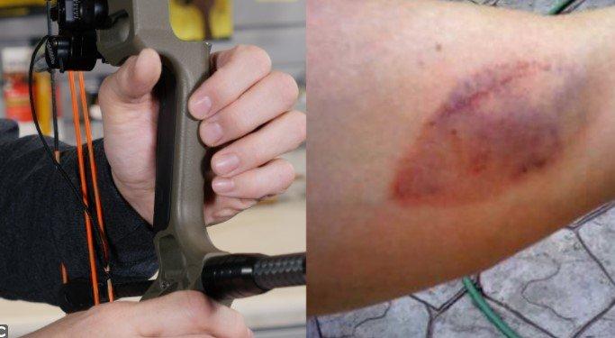 Bowhunting Injuries